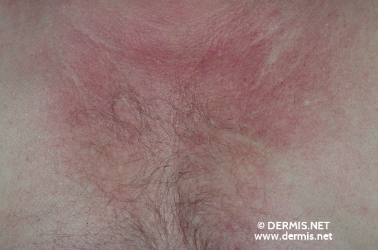 localisation: decolleté diagnosis: Dermatomyositis