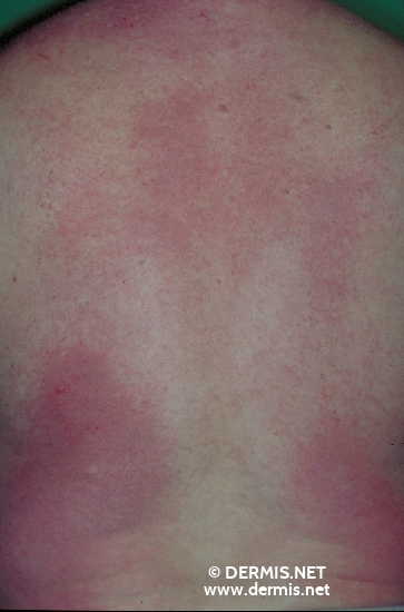 localisation: back diagnosis: Dermatomyositis