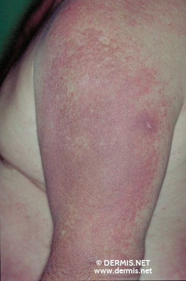localisation: upper arms diagnosis: Dermatomyositis