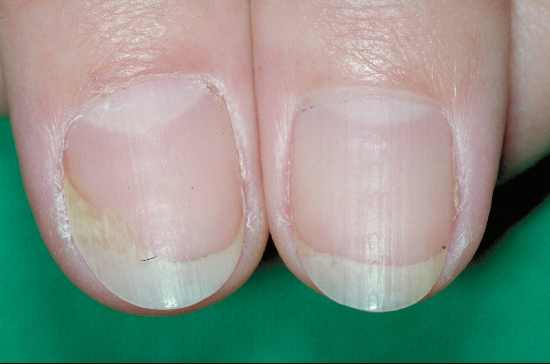 localisation: fingernail diagnosis: Psoriasis Vulgaris, Nail Changes