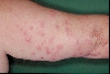 localisation: upper arms, diagnosis: Cimicosis