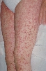 localisation: upper leg, diagnosis: Stevens-Johnson Syndrome