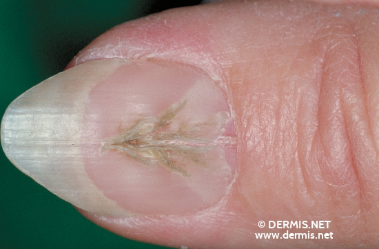 localisation: nail plate of the finger diagnosis: Onychodystrophia Mediana Canaliformis