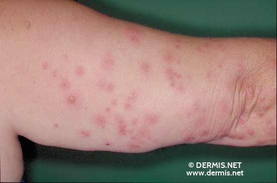 localisation: upper arms diagnosis: Cimicosis