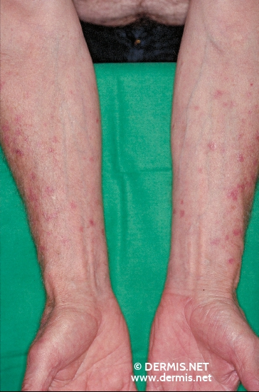 localisation: lower arms diagnosis: Disseminated Superficial Actinic Porokeratosis