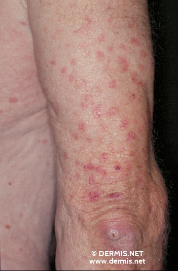 localisation: upper arms diagnosis: Disseminated Superficial Actinic Porokeratosis