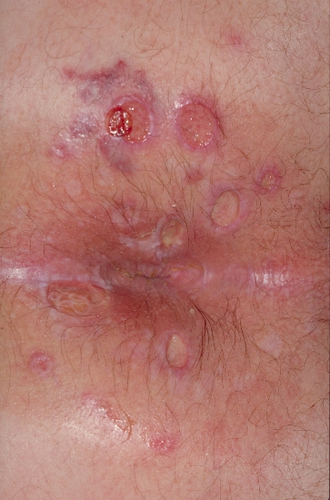 Pictures of Viral Skin Diseases and Problems - Herpes ...
