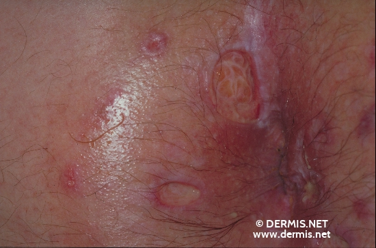 localisation: peri-anal  region diagnosis: Herpes Simplex Analis