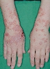 localisation: back of the hands, lower arms, diagnosis: Herpes Gestationis