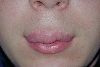 localisation: upper lip, diagnosis: Cheilitis Granulomatosa of Miescher