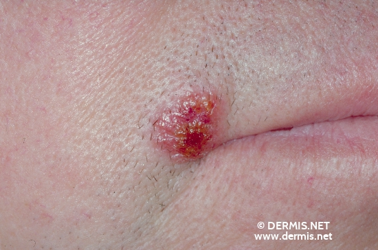 localisation: angle of the mouth diagnosis: Small-Vesicle Impetigo Contagiosa
