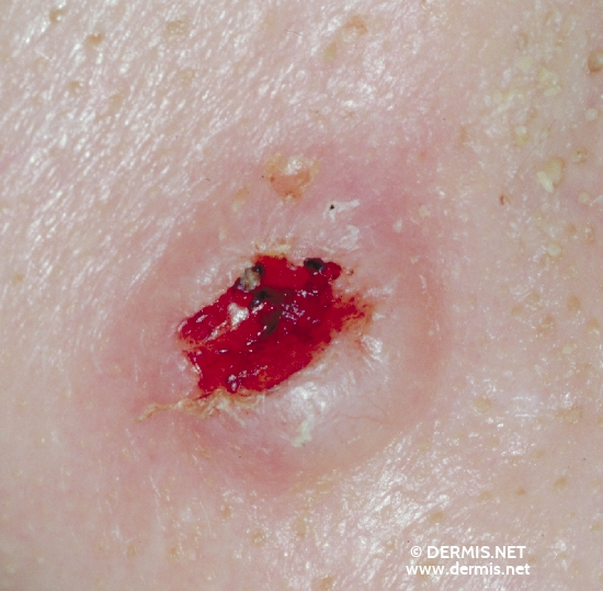 localisation: [n/a] diagnosis: Basal Cell Carcinoma