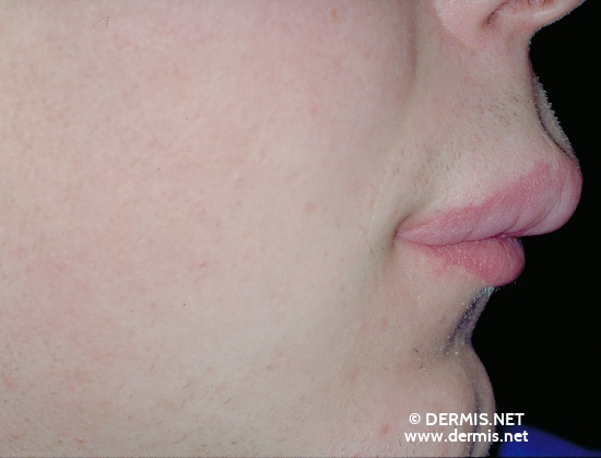 localisation: upper lip diagnosis: Cheilitis Granulomatosa of Miescher
