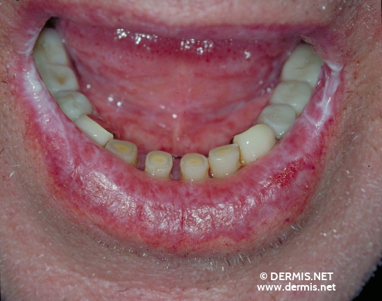 localisation: lower lip diagnosis: Lichen Planus of the Mucosa, Erosive