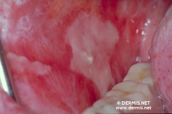 localisation: mucous membrane of the mouth diagnosis: Lichen Planus of the Mucosa, Erosive