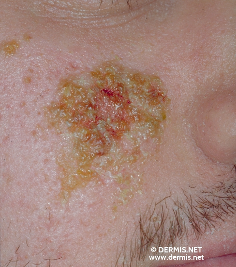 localisation: cheek diagnosis: Small-Vesicle Impetigo Contagiosa