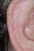 localisation: auricle, diagnosis: Foreign Body Granuloma