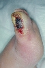 localisation: toe, diagnosis: Peripheral Arterial Circulatory Disorders, Diabetic Gangrene