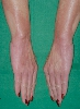 localisation: hands, wrists, diagnosis: Scleromyxoedema Arndt-Gottron