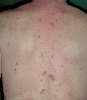 localisation: back, diagnosis: Pemphigus Foliaceus