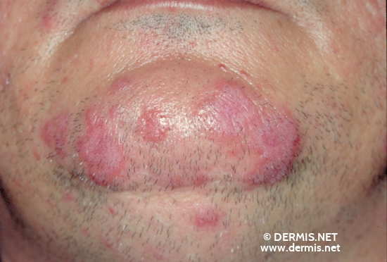 localisation: chin diagnosis: Discoid Lupus Erythematosus (DLE)
