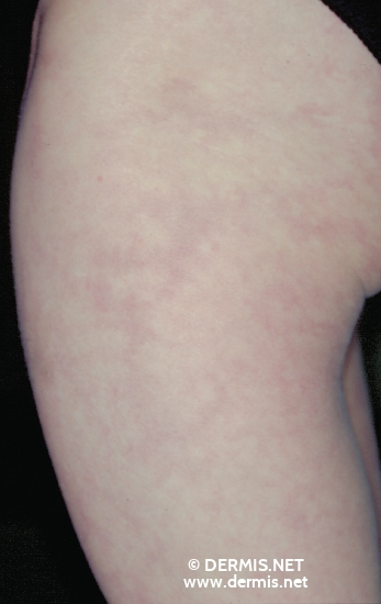 localisation: upper leg diagnosis: Livedo Reticularis