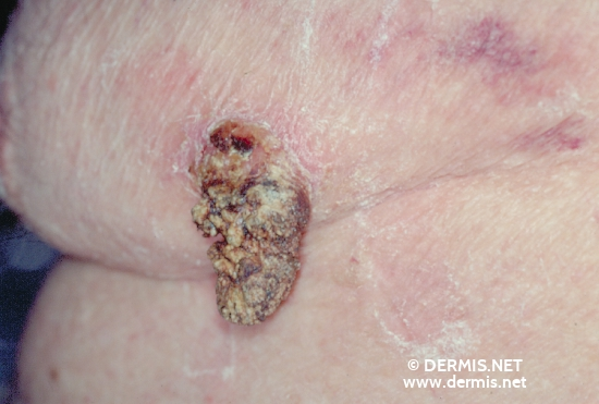 localisation: chest diagnosis: Seborrheic Keratosis