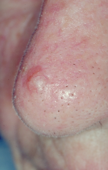 Skin Cancer: Merkel Cell Carcinoma