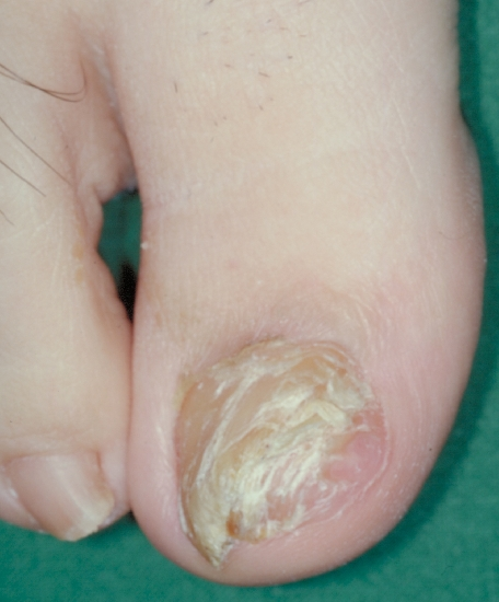 localisation: toe diagnosis: Exostosis, Subungual