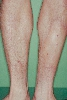 localisation: lower leg, diagnosis: Localized Scleroderma