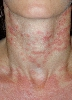 localisation: neck, diagnosis: Subacute Cutaneous Lupus Erythematosus SCLE