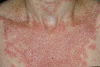 localisation: decolleté, diagnosis: Subacute Cutaneous Lupus Erythematosus SCLE