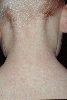 localisation: back of neck, diagnosis: Erythema Infectiosum