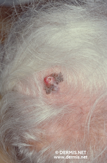 localisation: scalp diagnosis: Superficial Spreading Melanoma (SSM)