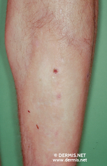 localisation: lower leg diagnosis: Localized Scleroderma
