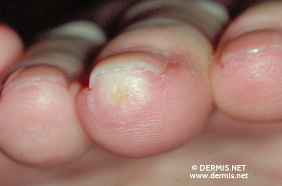localisation: tip of the finger diagnosis: Progressive Systemic Scleroderma