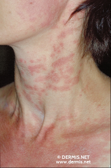 localisation: neck diagnosis: Subacute Cutaneous Lupus Erythematosus SCLE