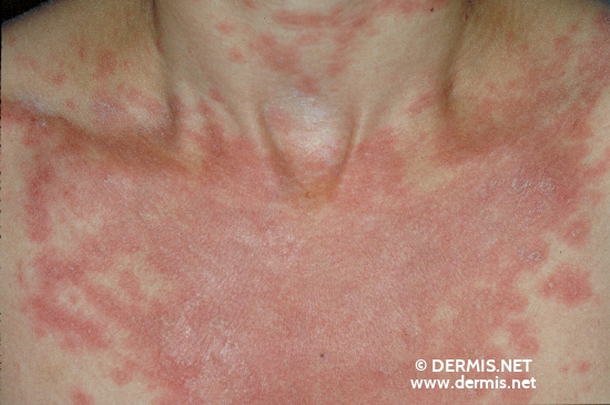 localisation: decolleté diagnosis: Subacute Cutaneous Lupus Erythematosus SCLE