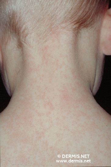localisation: back of neck diagnosis: Erythema Infectiosum