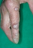 localisation: finger, diagnosis: Erythema Elevatum Diutinum