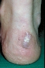 localisation: heel, diagnosis: Erythema Elevatum Diutinum