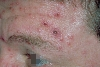 localisation: forehead, diagnosis: Varicella