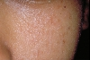 localisation: cheek, diagnosis: Nevus Comedonicus