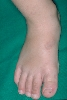 localisation: back of the feet, diagnosis: Recurrent Palmoplantar Hidradenitis