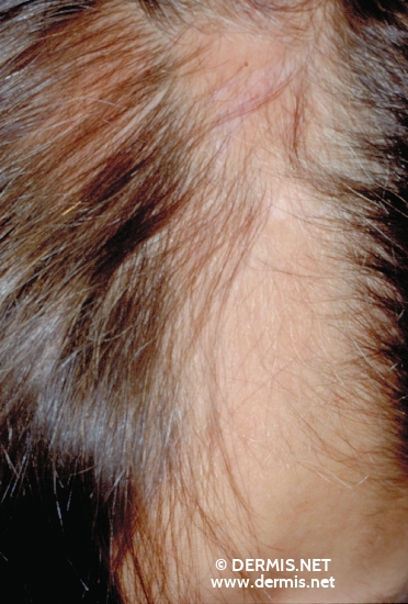 localisation: scalp diagnosis: Morphea, Linear