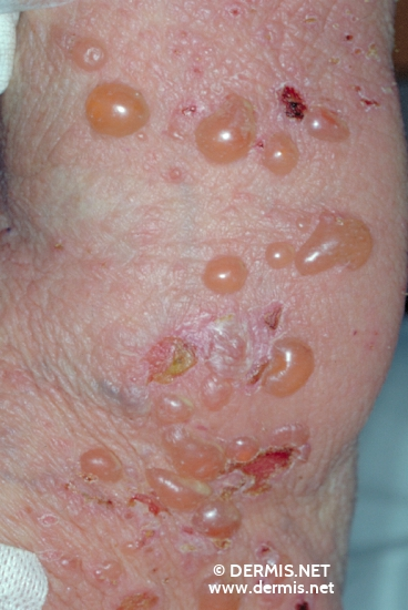Bullous Impetigo - Pictures, Causes, Treatment and Natural ...