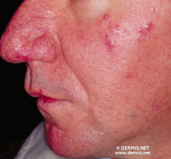 localisation: face diagnosis: Rosacea