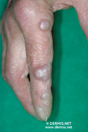 localisation: finger diagnosis: Erythema Elevatum Diutinum