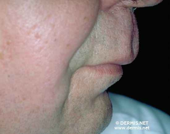 localisation: [n/a] [n/a] diagnosis: Melkersson-Rosenthal Syndrome Cheilitis Granulomatosa of Miescher