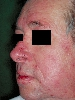 localisation: face, diagnosis: Rosacea